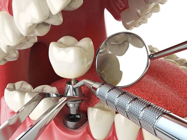 ایمپلنت؛ جایگزین دندان های از دست رفته