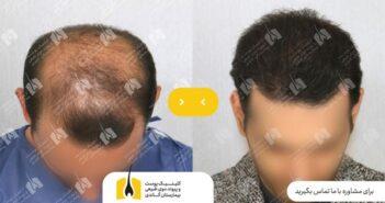 تکنیک کاشت مو FUE - بهترین راهحل برای کاشت بدون درد مو