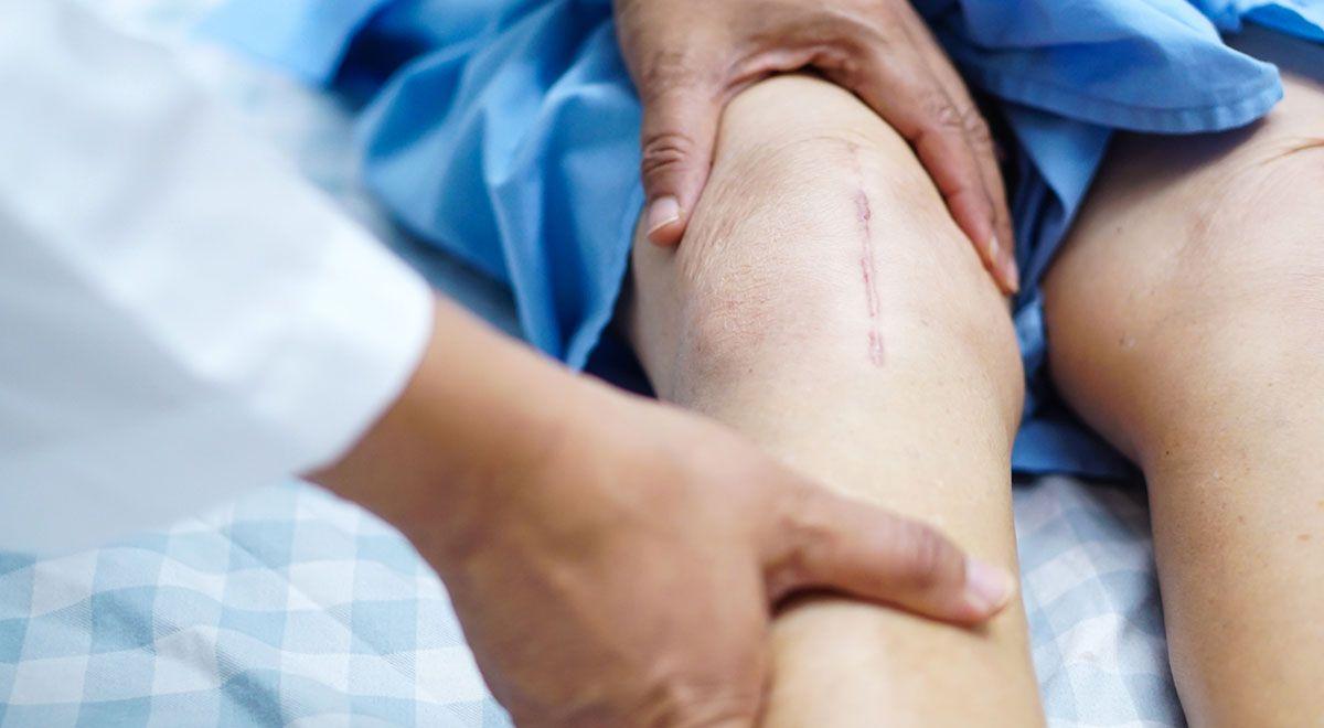 پاسخ به برخی از سوالات رایج در ارتباط با تعویض مفصل زانو