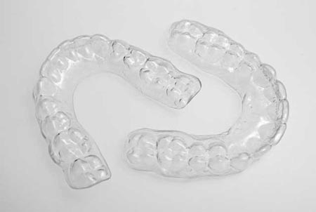 ارتودنسی متحرک برای چه دندان هایی است؟