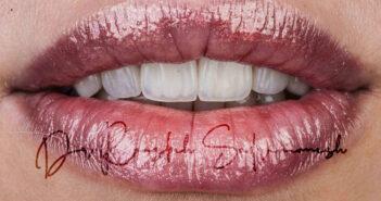 ایمپلنت دندان ، تولد حس سلامتی
