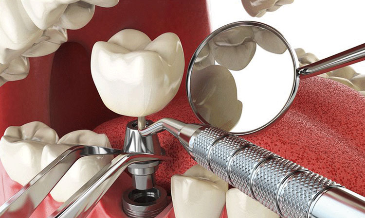 ایمپلنت دیجیتال جدیدترین تکنولوژی برای دندان از دست رفته