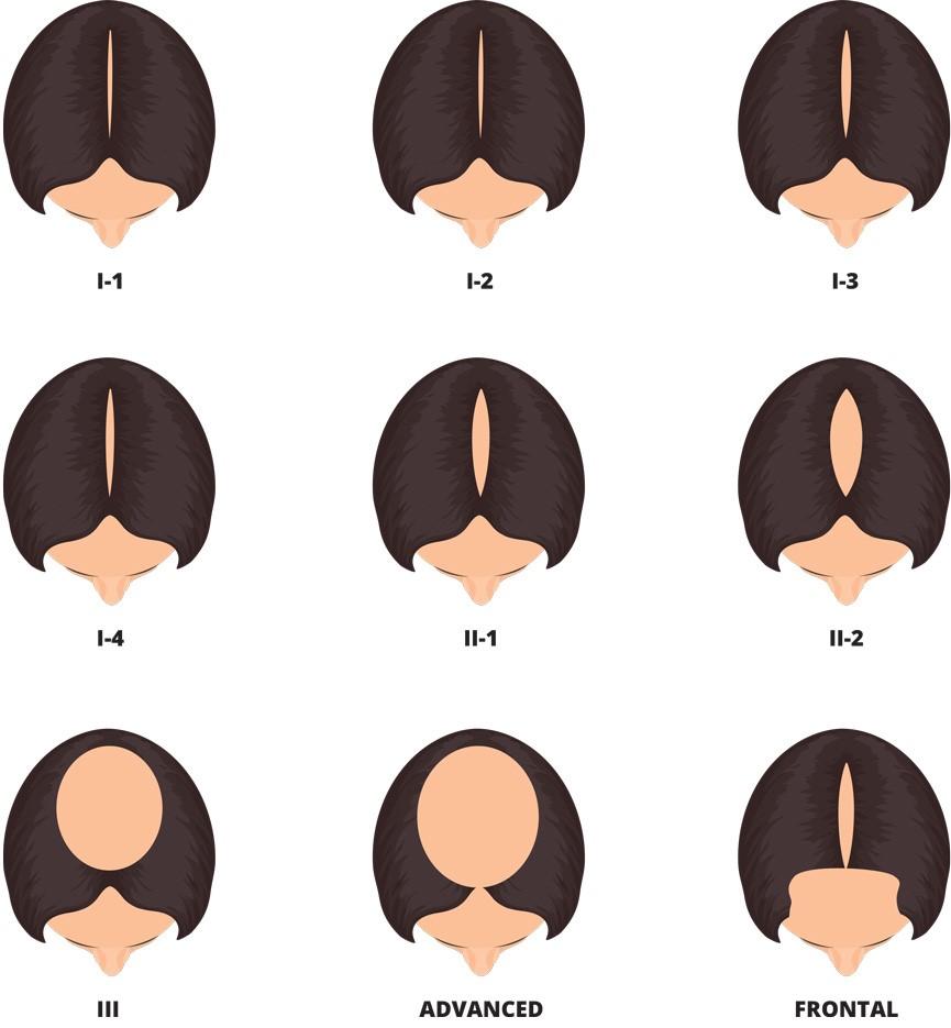 آلوپسی آندروژنیک - ریزش موی الگوی زنانه