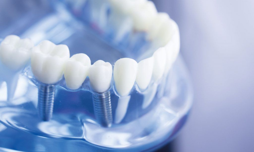 ایمپلنت دندان چیست ؟