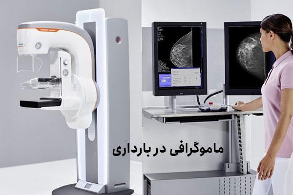 چه زمانی برای ماموگرافی مناسب است؟