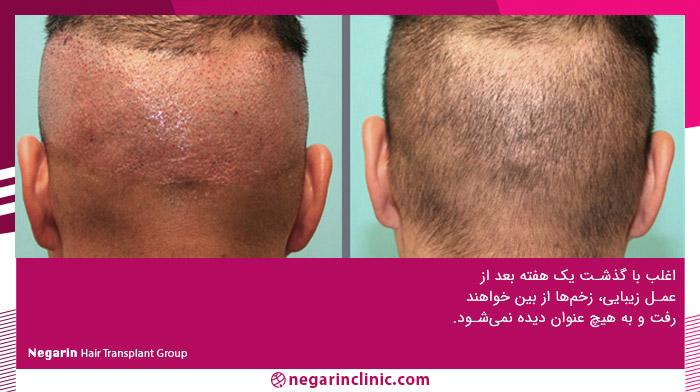 زخم بعد از کاشت مو