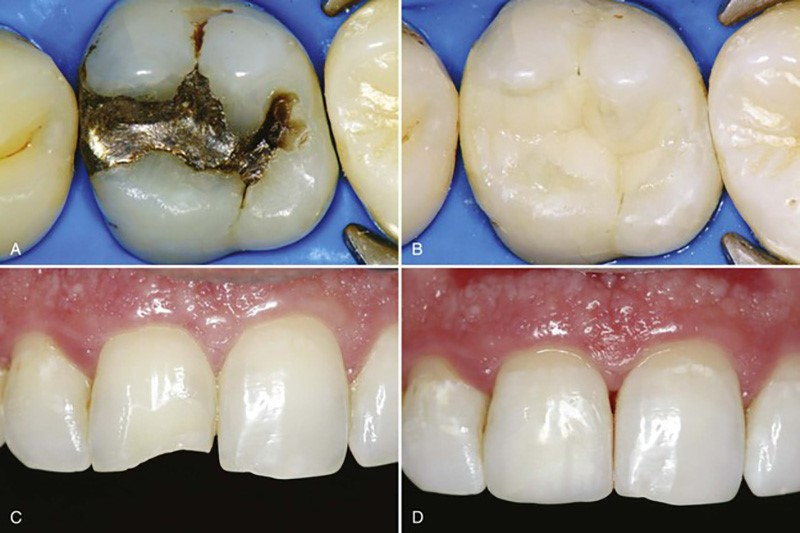 بررسی کاربرد کامپوزیت دندانپزشکی و معرفی برندهای برتر