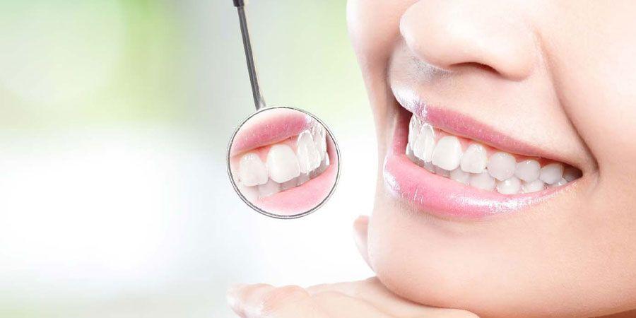 دندان های زیبا و مرتب
