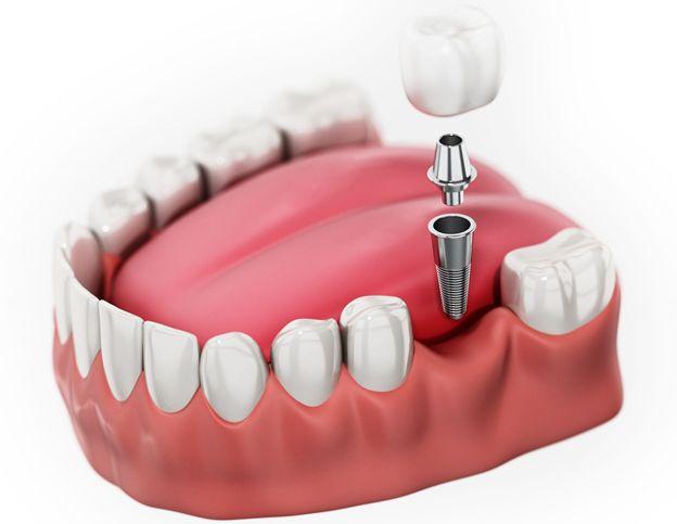 چند توصیه ساده برای مراقبت از ایمپلنت دندان