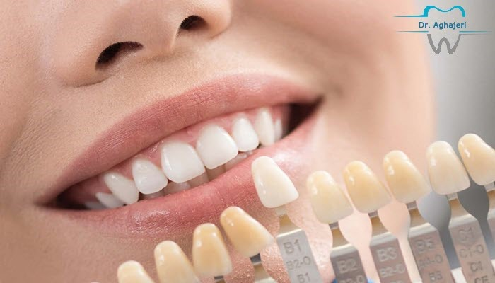 قیمت لمینت دندان با تخفیف پاییزه زیبایی دائمی دندان ها را تجربه کنید.